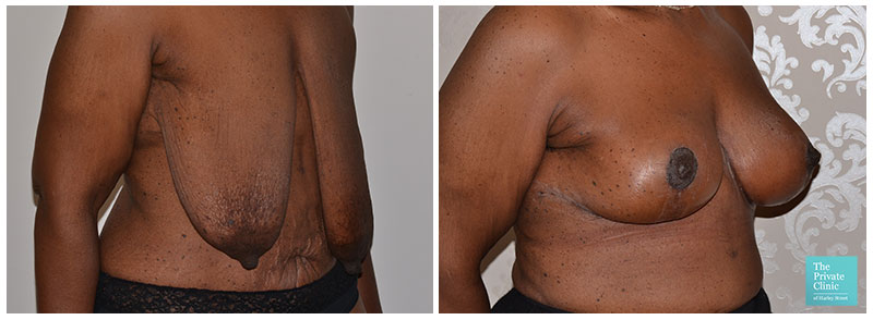 Breast Uplift Before and After Photos