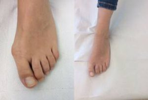 bunion correction surgery before after photo