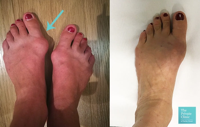 minimally invasive bunion surgery before after photo