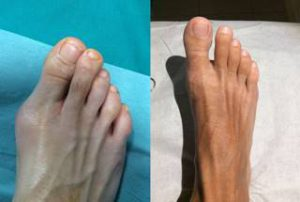 bunion surgery london uk before after photo