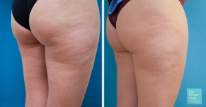 cellulite removal legs before after photo