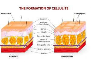 cellulite causes treatment