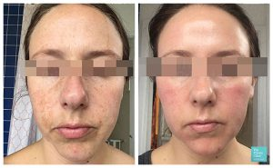 Chemical Skin Peels before after photos UK