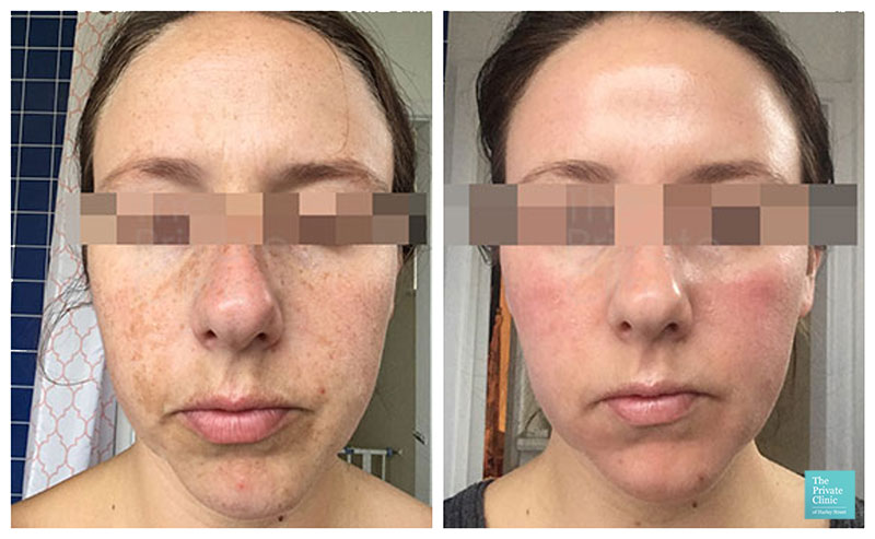 Skin Chemical Peels before after photo