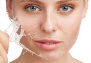 chemical peel skin take off
