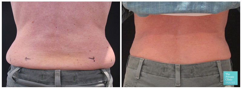 coolsculpting fat freezing crylipolysis hips flanks sides love handles before after results