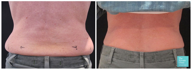 Love handles treatment before after female photo