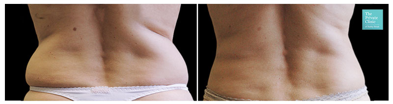 CoolSculpting treatment flanks/hips before after photo