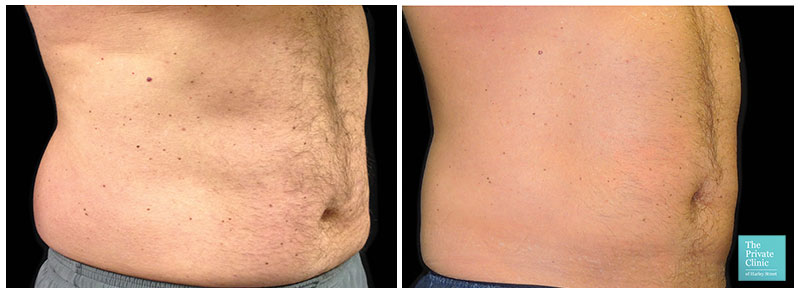 CoolSculpting flanks before after photo