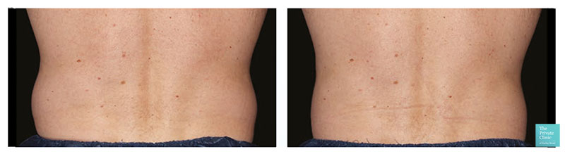 CoolSculpting abdomen before after photo