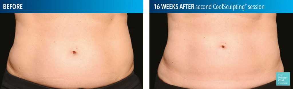 non surgical stomach lipo before after photo