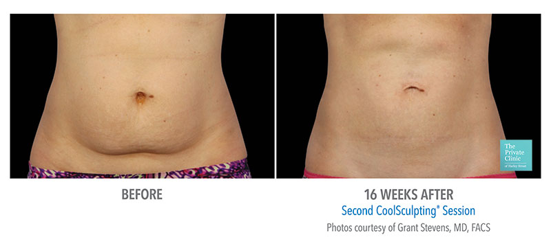 coolsculpting fat freezing abdomen tummy stomach results before after photos