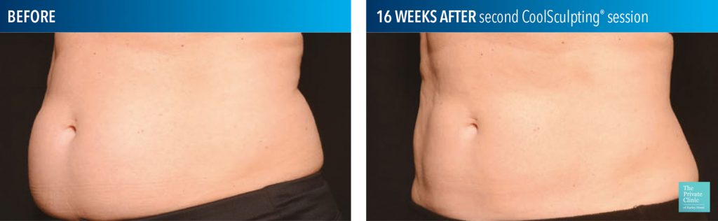 coolsculpting fat freezing results before after photos abdomen tummy stomach leeds manchester