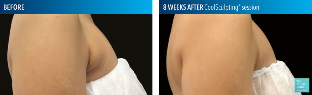 coolsculpting fat freezing bra fat before after photos
