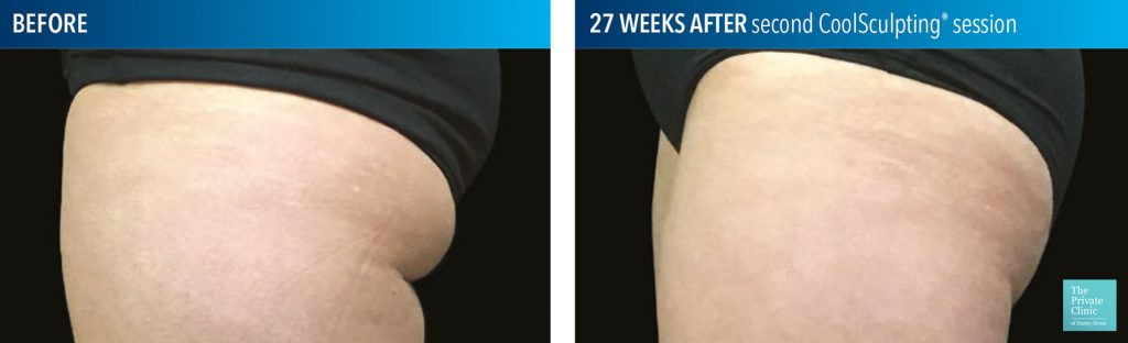 coolsculpting fat freezing buttocks banana roll before after photos