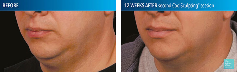 coolsculpting fat freezing chin treatment before and after results