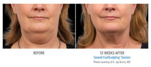 coolsculpting fat freezing double chin before after photos