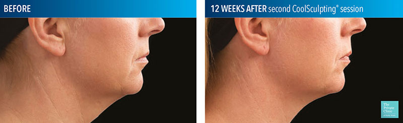 CoolSculpting to the neck