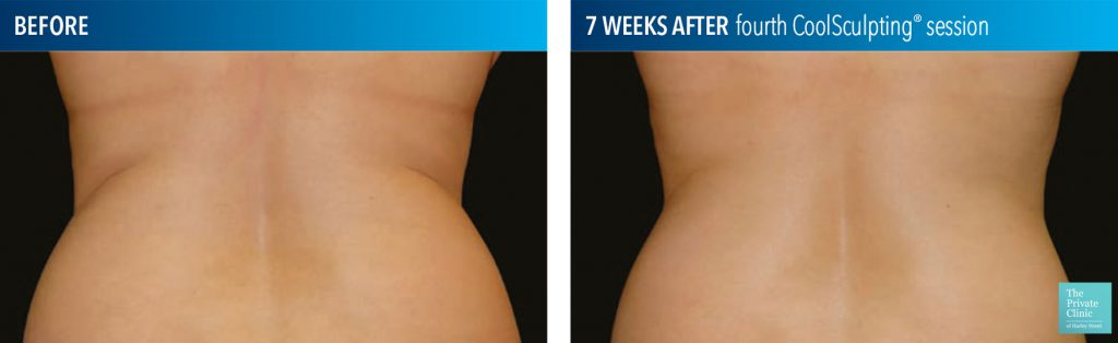 coolsculpting fat freezing flanks before after photos