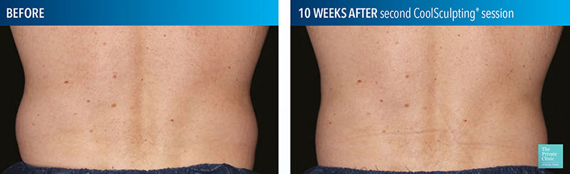 CoolSculpting back, flanks/sides/hips before and after results