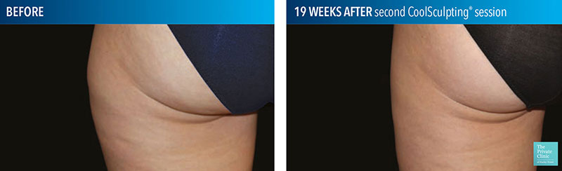 coolsculpting fat freezing outer thighs before after photos leeds manchester bristol