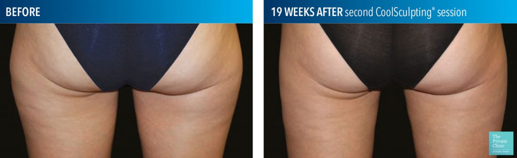 coolsculpting fat freezing thighs before after photos