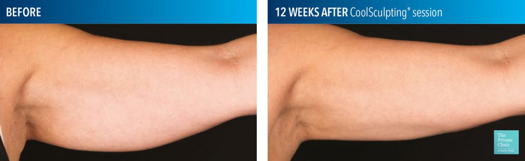 coolsculpting fat freezing upper arm before after photos