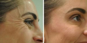 crows feet treatments before after photo