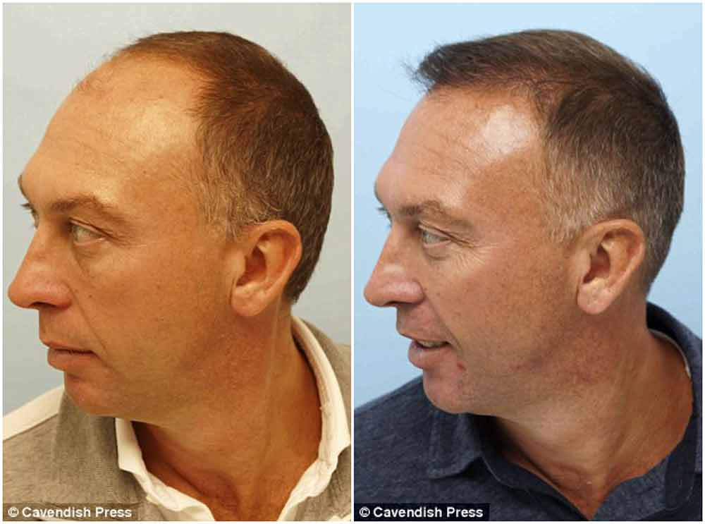 david platt before after hair transplant private clinic