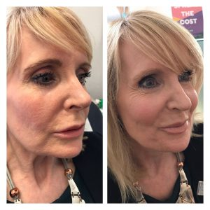 dermal filler cheek filler injections before after photos