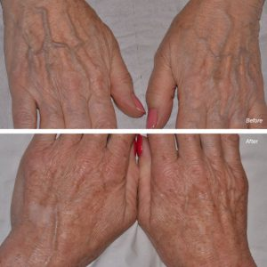 dermal filler injections hands before after photos