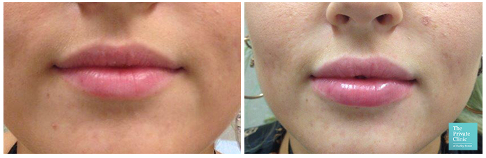 dermal filler near me london before after photo