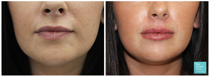 dermal filler near me london harley street before after photo