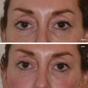 dermal filler tear trough under eye injections before after photo