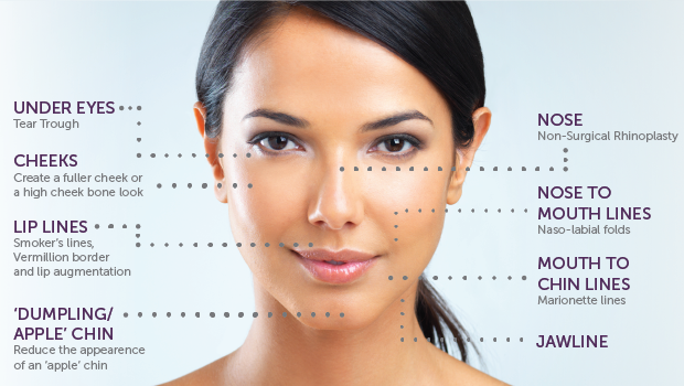 What areas of the face can be treated with dermal fillers