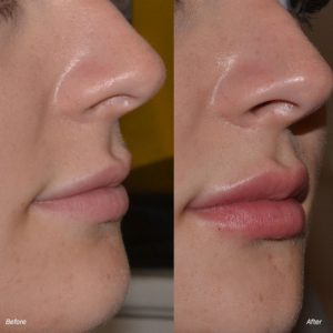 dermal lip filler injections before after