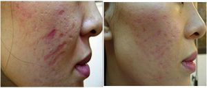 dermaroller acne scars before after photo