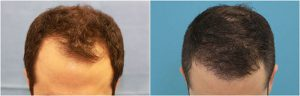 dr reddy fue hair transplant before after photo