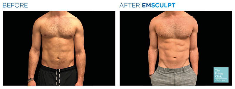 muscle building treatment emsculpt before and after photo