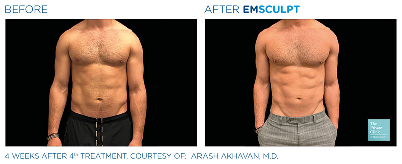 emsculpt muscle building fat reduction abdomen 6 pack manchester before after photo