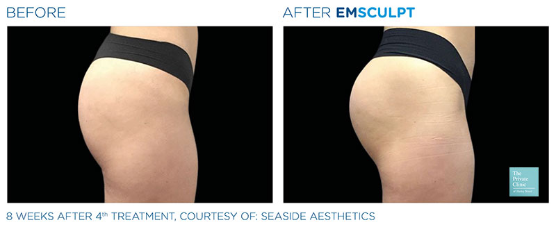 Non-Surgical Buttock Lift procedure before after photo results