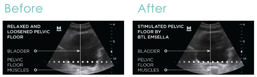 Female urge incontinence emsella treatment before and after