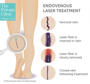 Endovenous laser treatment for varicose veins
