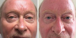 eyelid surgery before and after photo