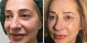 eyelid surgery fat transfer