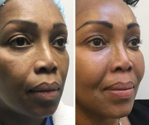 face fat transfer before and after photo UK