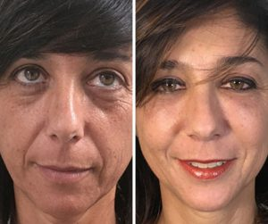 face fat transfer results before after photo