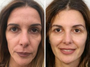 facelift before and after photo london