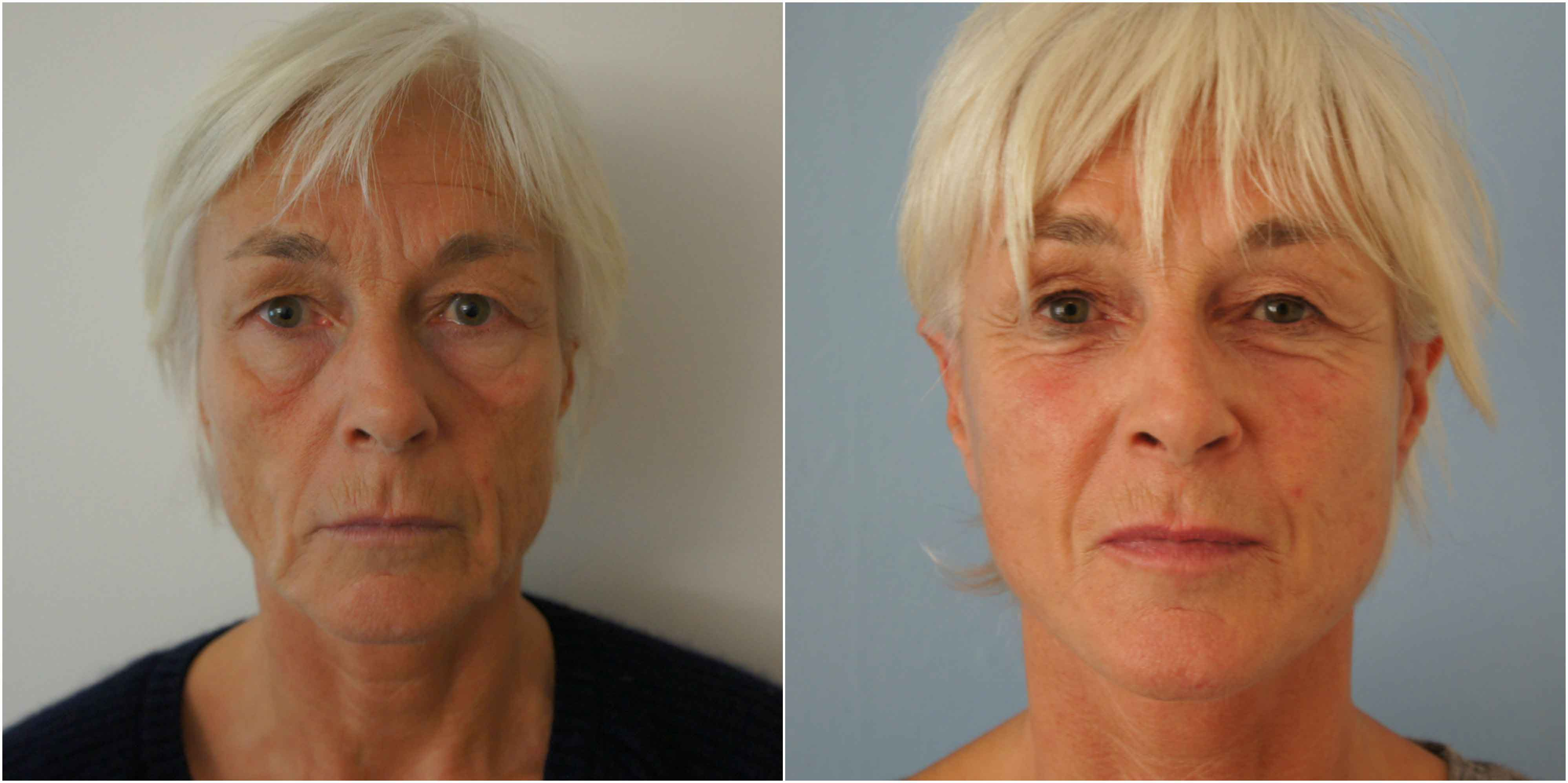Mini Facelift Before and After Photo UK
