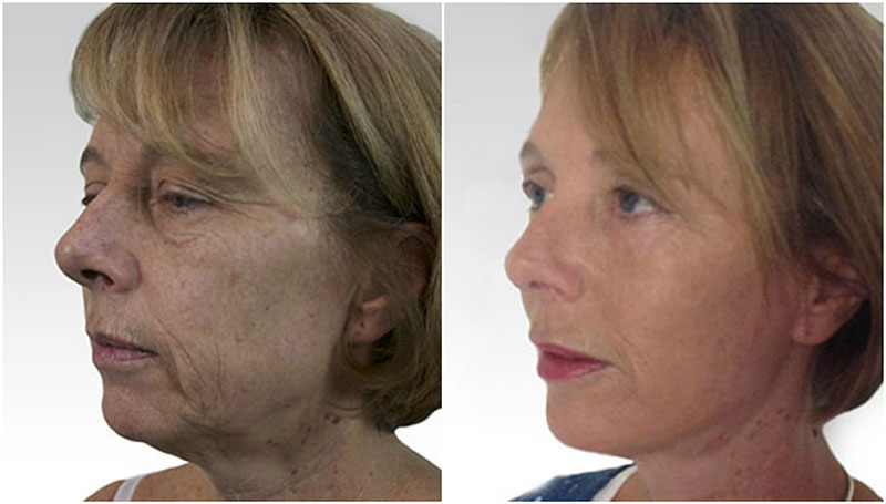 Facelift Before and After Photo UK